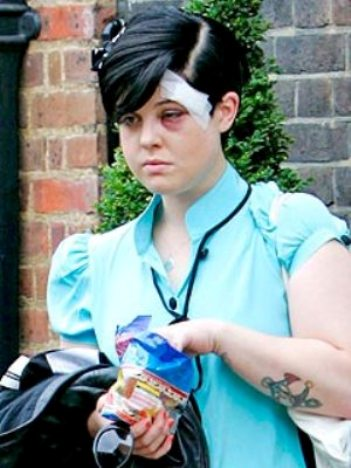 kelly osbourne with black eye and bandage