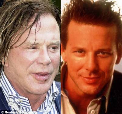 mickey rourke when plastic surgery goes wrong