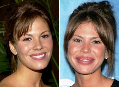 nikki cox lips bad plastic surgery