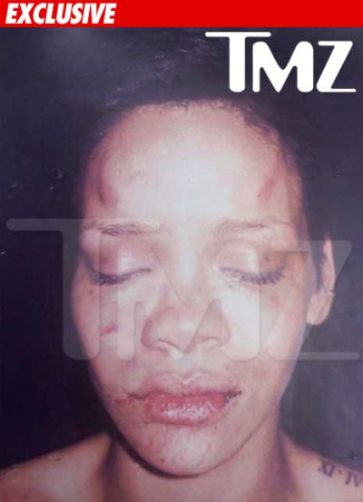 exclusive tmz photo rihanna chris brown beating