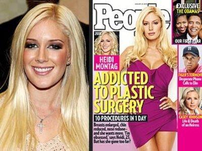 heidi montag surgery. images heidi montag plastic